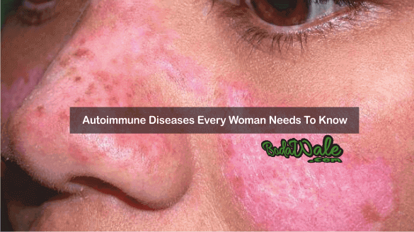 Autoimmune Diseases Every Woman Needs To Know 8